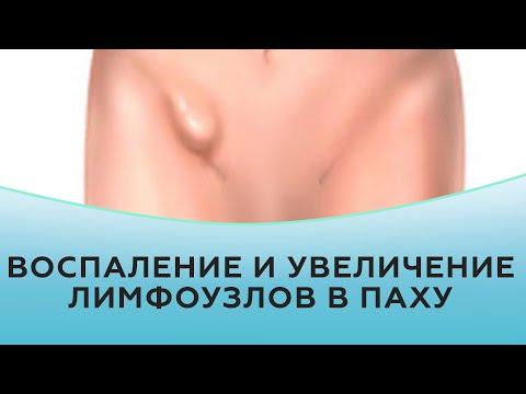Лечение лимфоузлов в паху у женщин лечение в домашних условиях