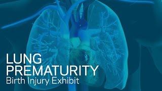Lung Prematurity - Birth Trauma Animation