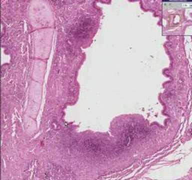 Histopathology Lung--Bronchiectasis