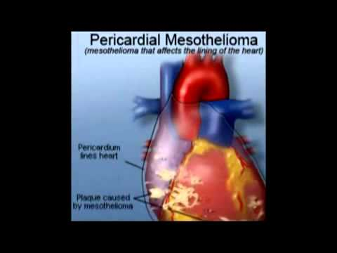 What Is Mesothelioma | Mesothelioma Resources Insurance