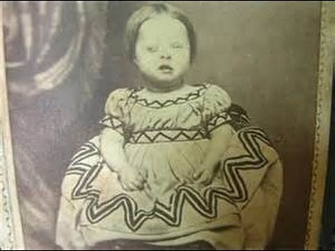 THE WORST POSTMORTEM PHOTOGRAPHY UPDATED
