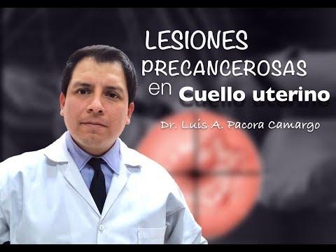 LESIONES EN CUELLO UTERINO, POR QUE NO PAPANICOLAOU !!!