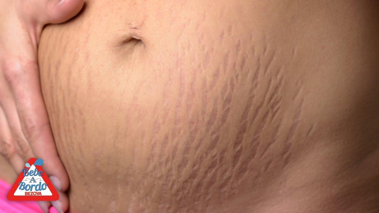 celulitis durante el embarazo