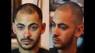 How To Fix Receding Hairline Naturally | No Pills, Spray Enhancements or tattoos