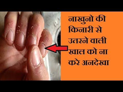 How To Remove Hang Nail From Fingers