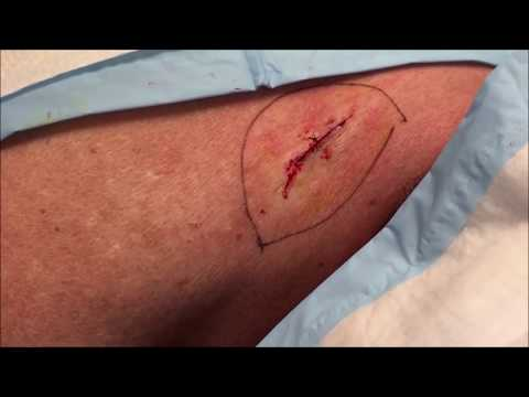 """""""whitehead""""-cyst-removed!-pimple-popping-surgery"""