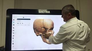 3D-Анатомия черепа. Виды соединений костей черепа. 3D Anatomy of the skull.Joints of the skull bones