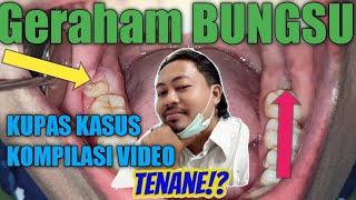 video mengenai gigi geraham bungsu dibawakan oleh drg. Alice Wenas , SpBM. http://www.rsborromeus.co.