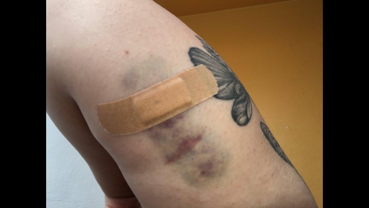 One month on Nexplanon (birth control arm implant) - YouTube