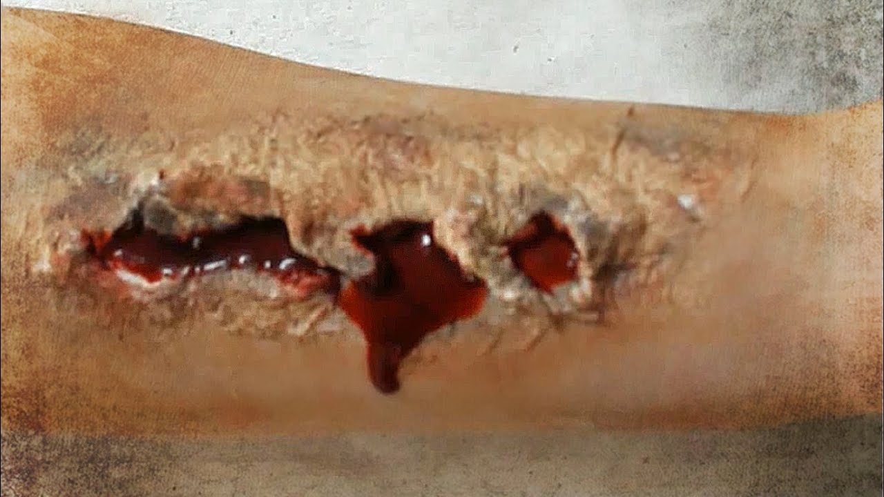 how to treat a cut or wound