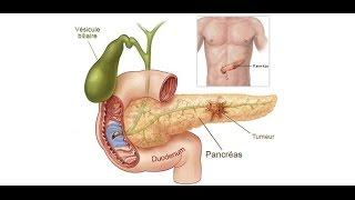 The mechanism of alcoholism causes acute pancreatitis