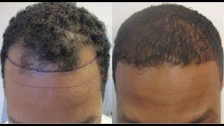 Hair Regrowth for Men Naturally