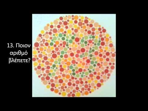 Τεστ χρωματικής αντίληψης Ishihara - Αχιλλέας Μάνδαλος, Χειρουργός Οφθαλμίατρος