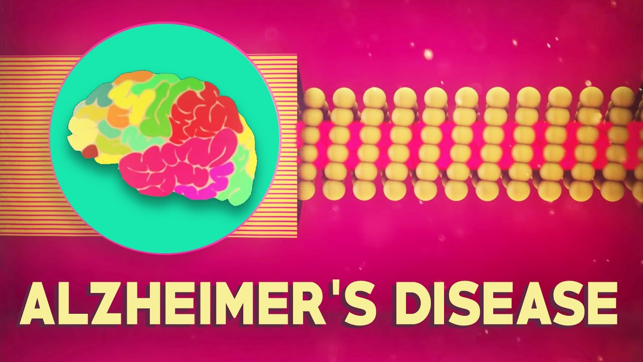 what is alzheimer s disease ivan seah yu jun youtube