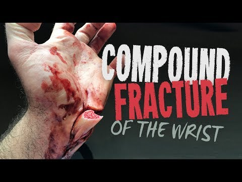 Don't do handstands - Compound fracture of the wrist SFX makeup tutorial