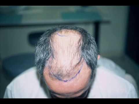 Si tombent les cheveux que faire les raisons