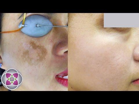 laser-melasma-&-hyperpigmentation-treatment