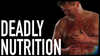 Deadly Nutrition: The REAL Dietary Killers | Dr. Michael Greger