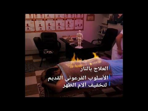 مصر: إن كنت تعاني من آلام الظهر.. فيمكنك علاجه بتقنية -التدليك الناري- …  - نشر قبل 2 ساعة