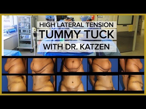 Tummy Tuck in 10 Steps - Transformation Tuesday with Dr Katzen