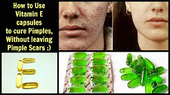 hqdefault - Do Vitamin E Capsules Help Acne
