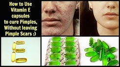 hqdefault - Vitamin E Oil On Pimple