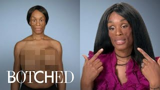"Koffa Wants ""Botched"" Doctors To Solve Her Medical Mystery 