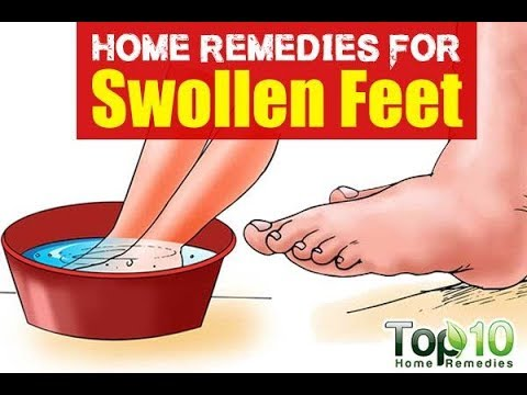 Swollen Feet: Can be Removed and Reduced - by Doc Willie Ong
