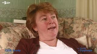 Dysphagia Case Study - Lesley H