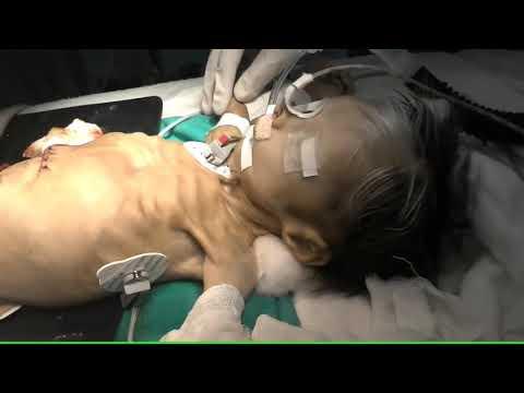 Waardenburg syndrome with Hirschsprung