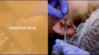 Золотая игла доктора Мухиной для снижения веса