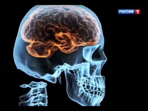 При менингите в каком месте болит голова