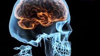 видео Боль в голове при резких движения