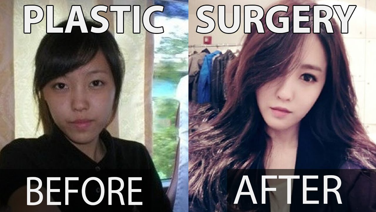 10 kpop stars before and after plastic surgery | misup - youtube