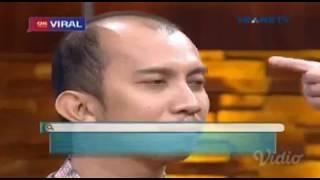 DR OZ Indonesia Cara mengatasi kebotakan pada usia yang masih muda  Pentingnya menjaga kebersihan ru