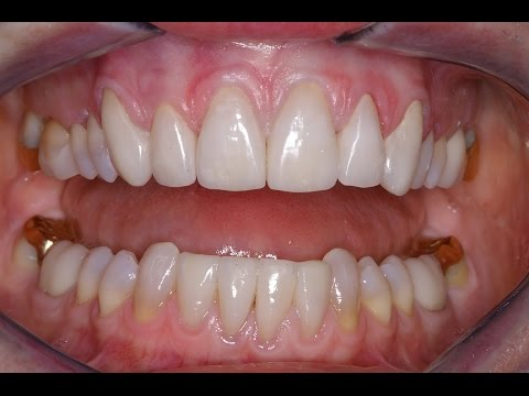 How Much Do Porcelain Veneers Cost With Insurance