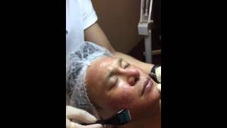 Vampire Facial exclusively at PRINZ , KL | Nadia Ladynne