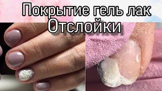 КОМБИНИРОВАННЫЙ МАНИКЮР И ПОКРЫТИЕ ГЕЛЬ ЛАК выравнивание базой отслойки на ногтях слайдер