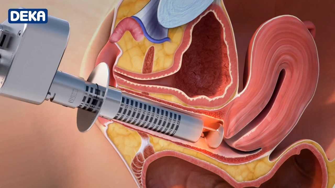 lézeres inkontinencia kezelés vélemények Prostatitis ampullák