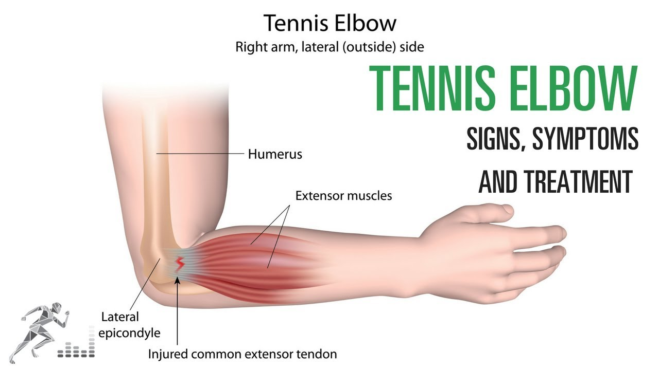 Tennis elbow: Signs and symptoms and treatment of the common elbow ...
