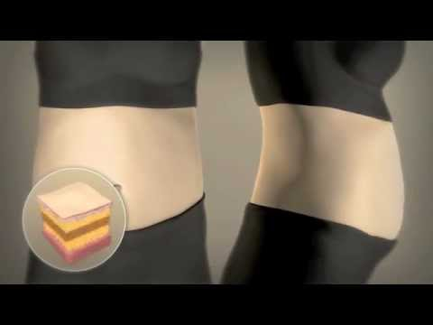 How Liposonix in Arizona Works from North Valley Plastic Surgery
