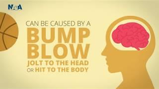 Video thumbnail: Concussion Explainer