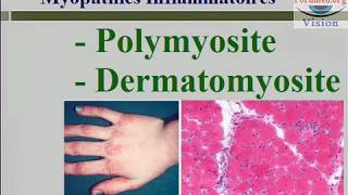 Les Myopathies inflammatoires : Polymyosite et Dermatomyosite