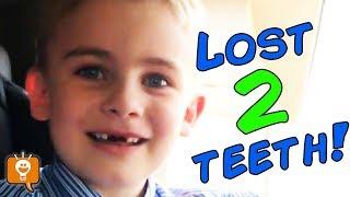 lost-2-top-teeth-hobbyfrog-lost-two-first-upper-baby-teeth-hobbyfamily-vlog