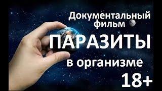 Паразиты в организме  18+ I Документальный фильм