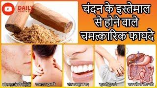 चंदन के इस्तेमाल से होने वाले चमत्कारिक फायदे || Beauty & Health Benefits of Sandalwood in Hindi