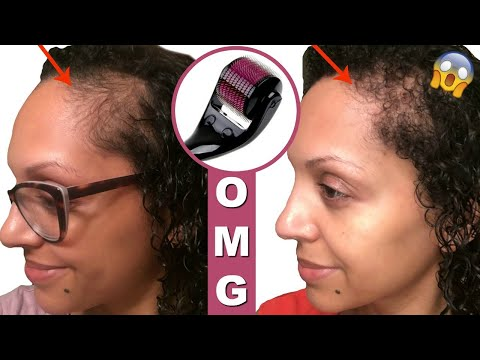EVERYTHING YOU NEED TO KNOW ABOUT DERMA ROLLERS FOR HAIR LOSS!!!