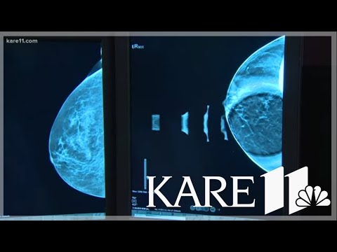 Is a 3D mammogram worth the higher cost?
