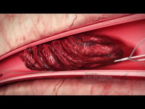 MVR Medical Animation showreel mvr co il