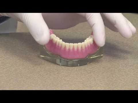 Implant Overdenture or an Implant Retained Denture
